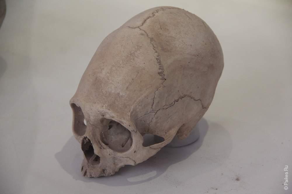 И как у любого уважающего себя музея в Перу тут есть мумии, а также очень любопытные черепа
